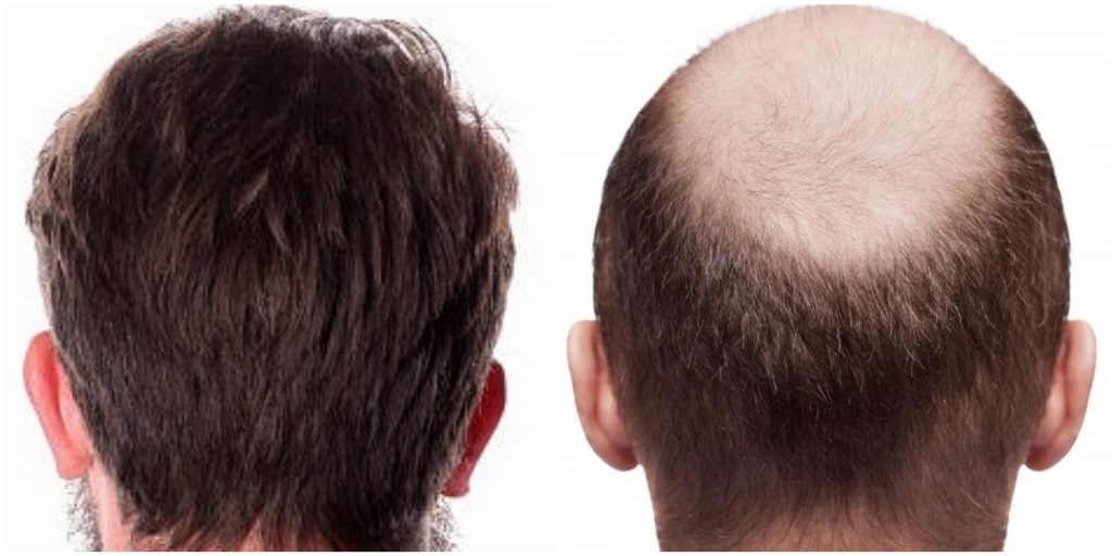 Hair transplant price