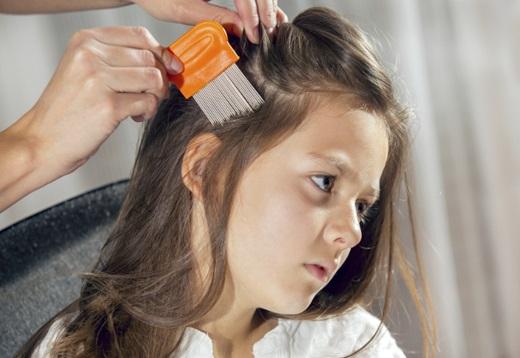 Head Lice Treatment